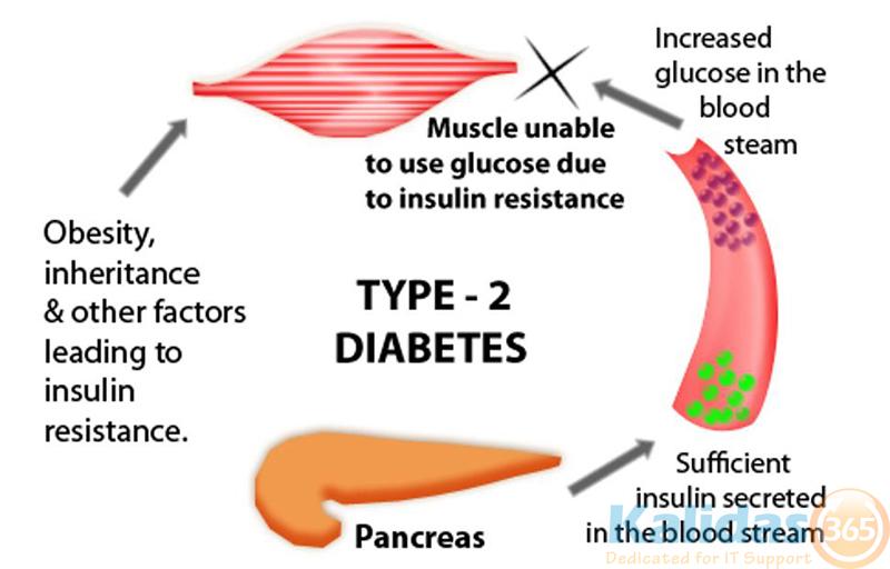 Type-2-Diabetes-1